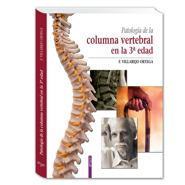 Patología de la columna vertebral en la 3ª Edad - Editorial médica Ergon