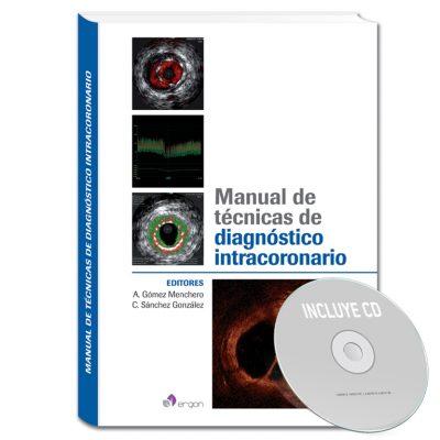 160_ergon_libro_manual_tecnicas_diagnostico_intracoronario